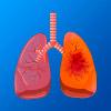 desenho do sistema respiratório, com a traqueia, brônquios e pulmões. O pulmão da esquerda está saudável, enquanto o da direita parece doente.