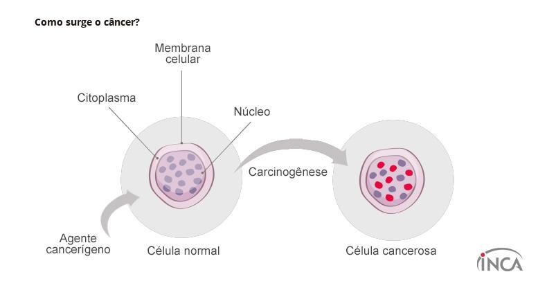 cancer celula hepatica)